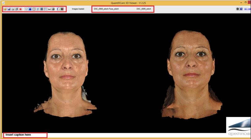 wizualizacja twarzy jak będzie wyglądać po zabiegu