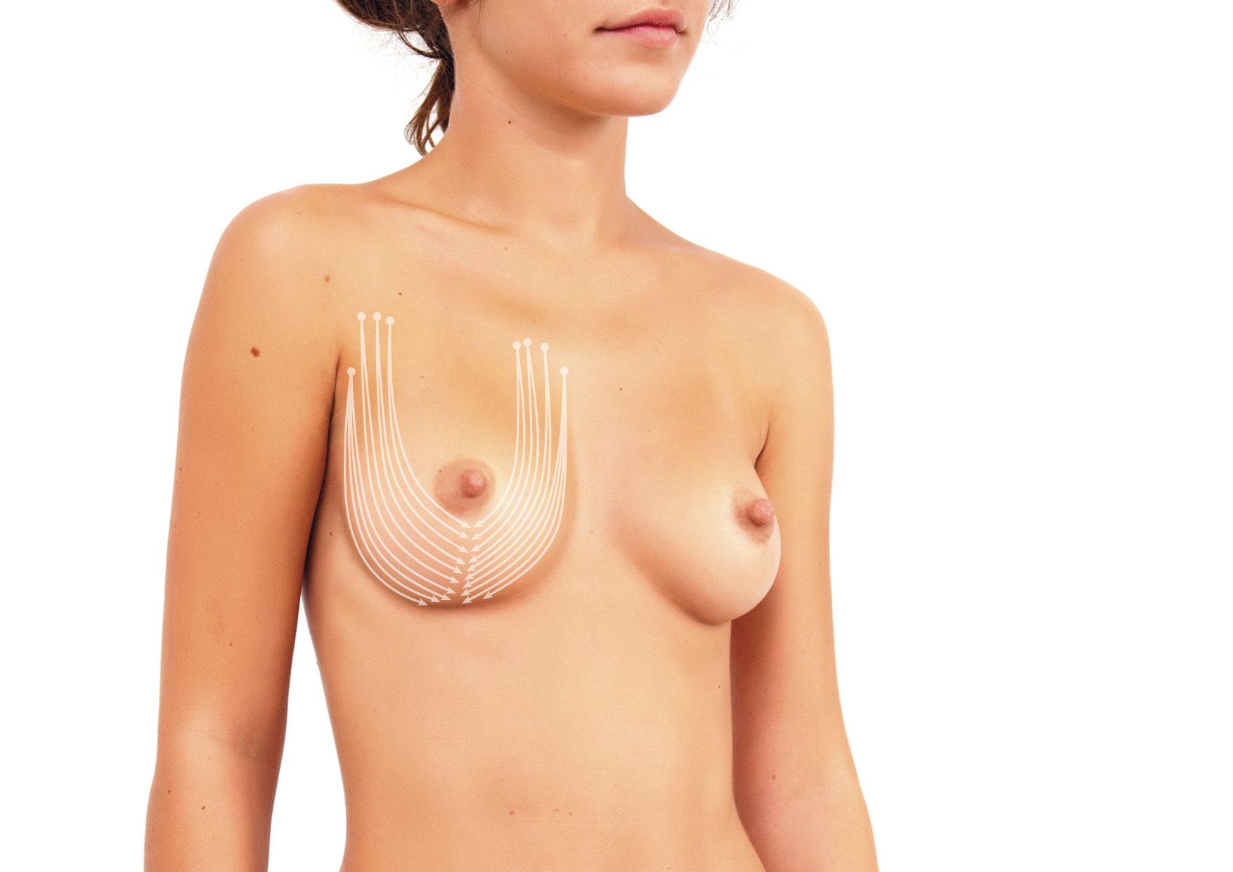 czym unieść opadające piersi nici