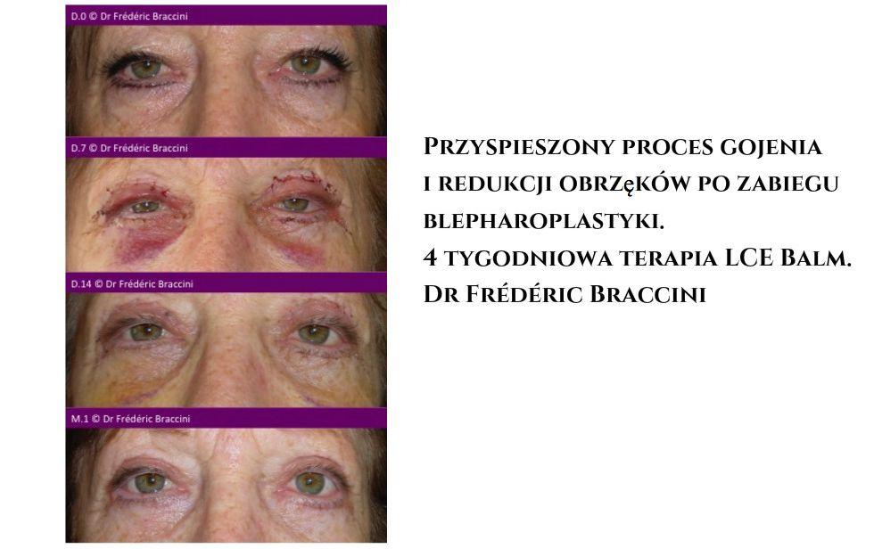 Blepharoplastyka