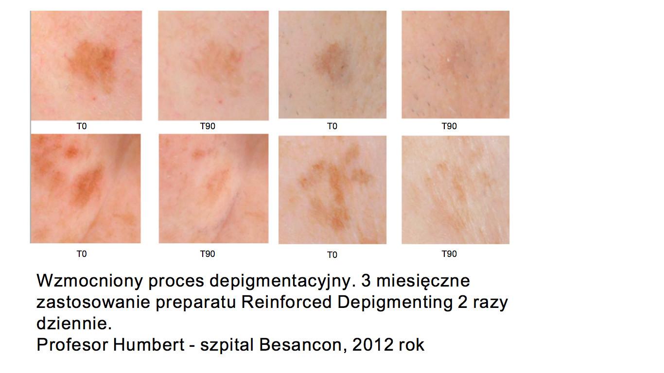jak pozbyć się przebarwień depigmentacyjnych