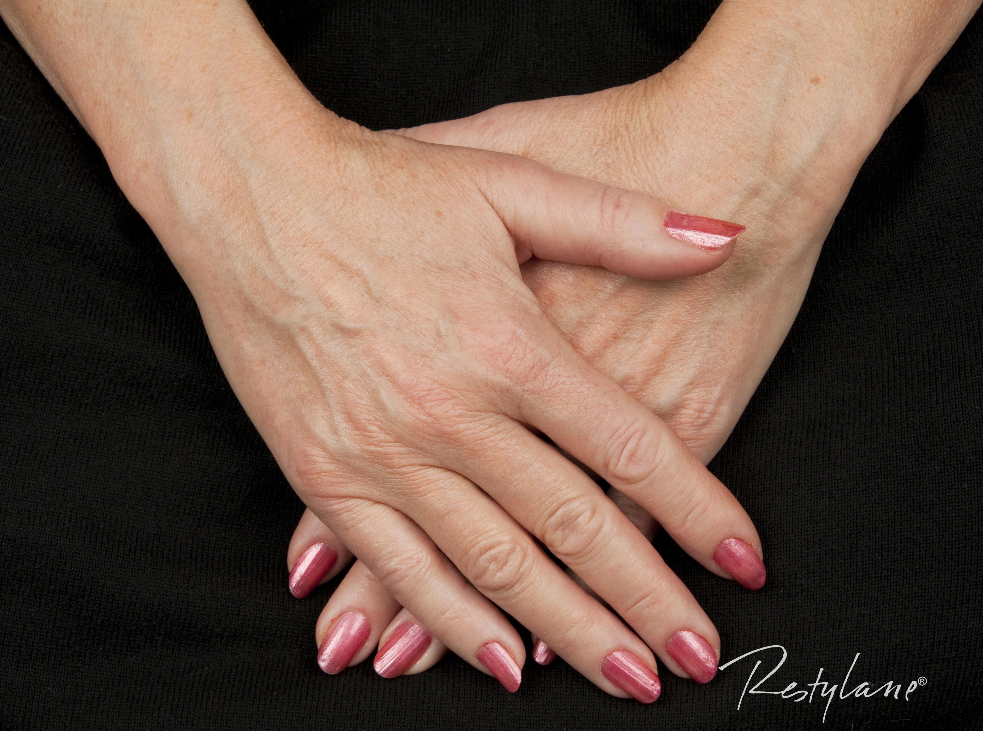 Hydrobalans Vital odmładzanie dłoni