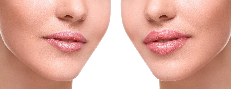 powiększanie ust powikłania
