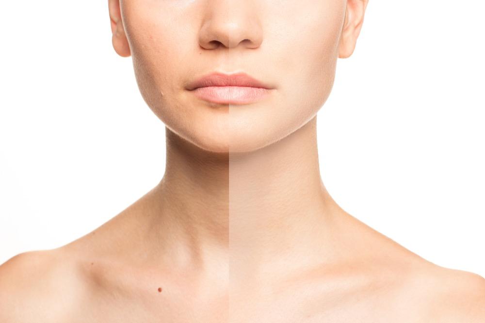 jak poprawić gęstość skóry