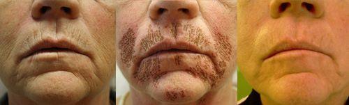 PLexr zmarszczki wokół ust dermaestetic