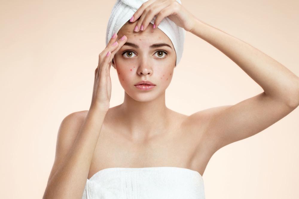 wyciskanie pryszczy oczyszczanie skóry
