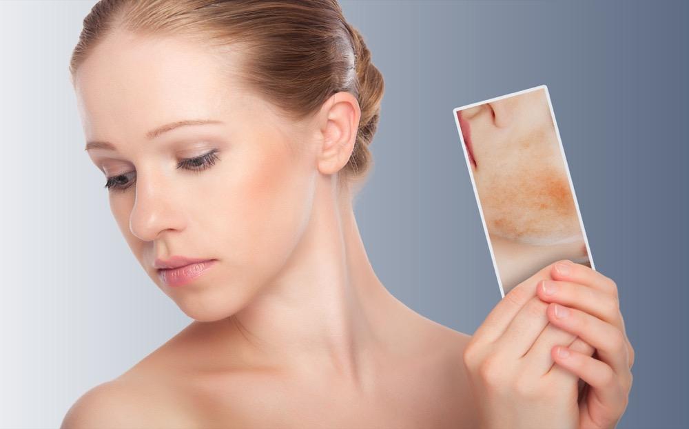 Widoczne naczynka i rumień - jak rozwiązać problem zaczerwienionej skóry twarzy?