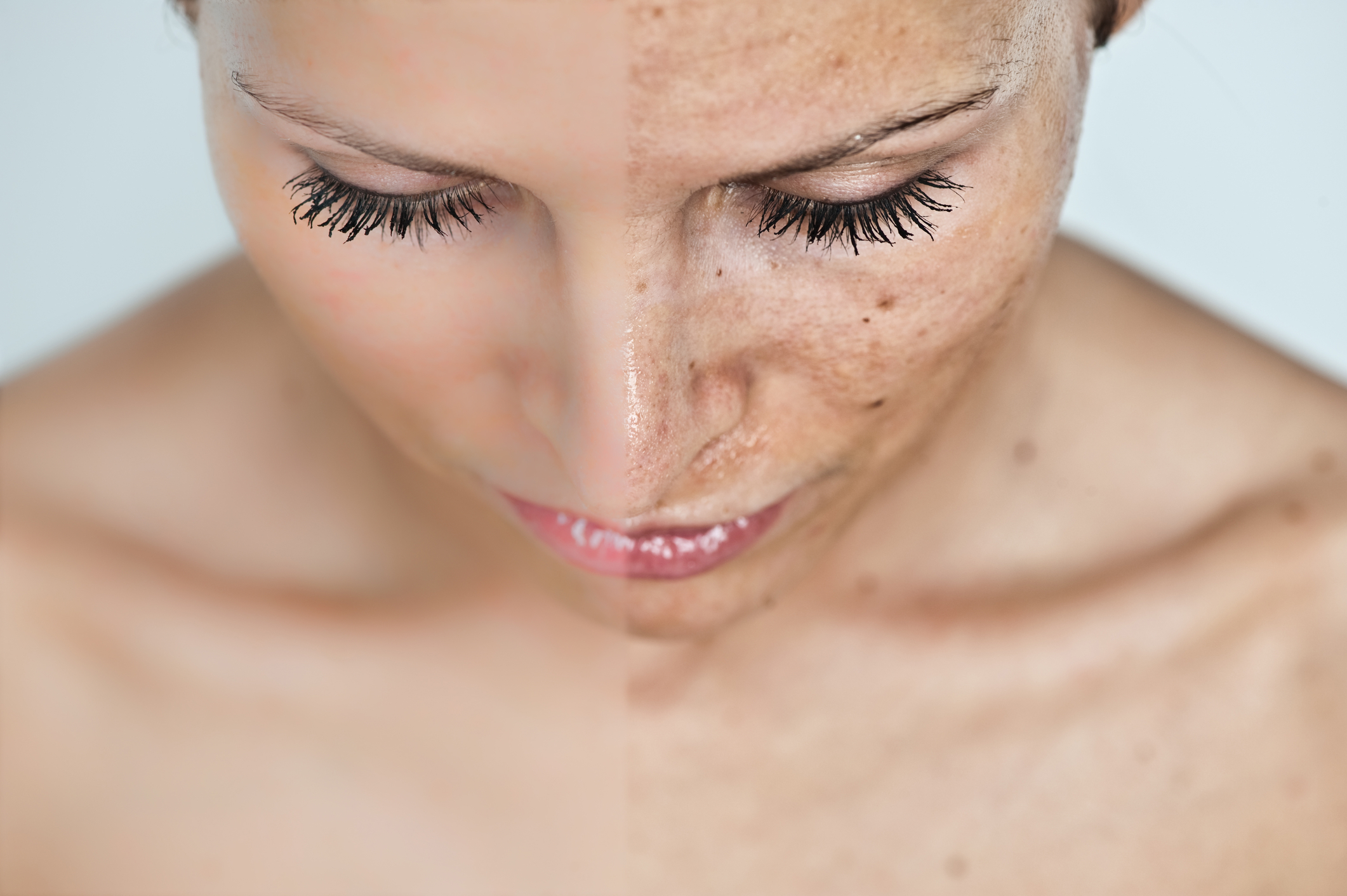 co-na-przebarwienia-dermaestetic