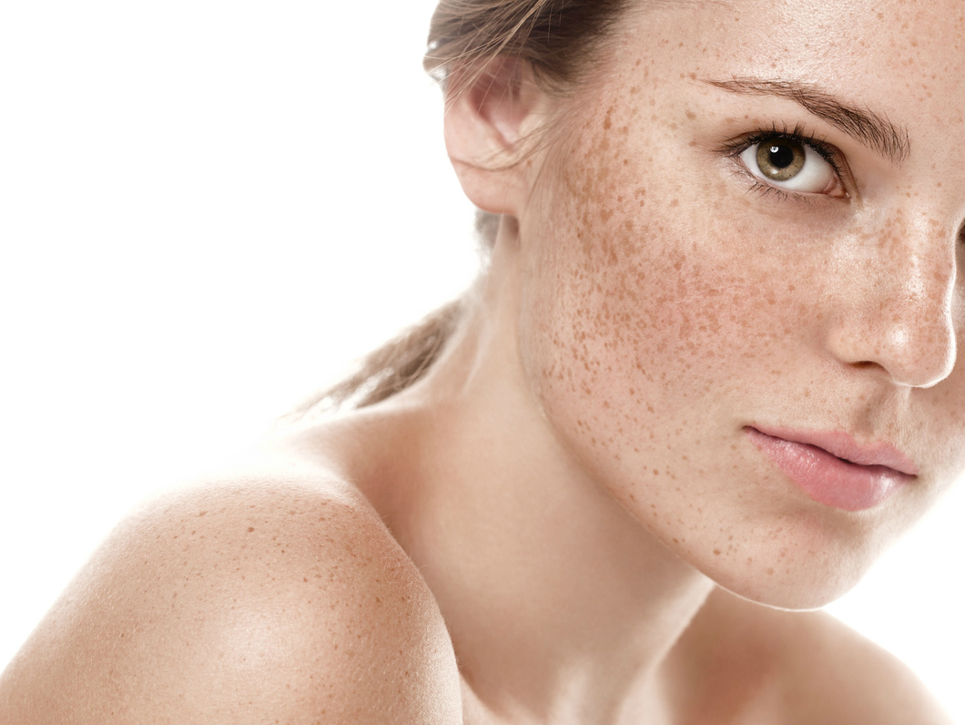 przebarwienia-zabiegi-dermaestetic