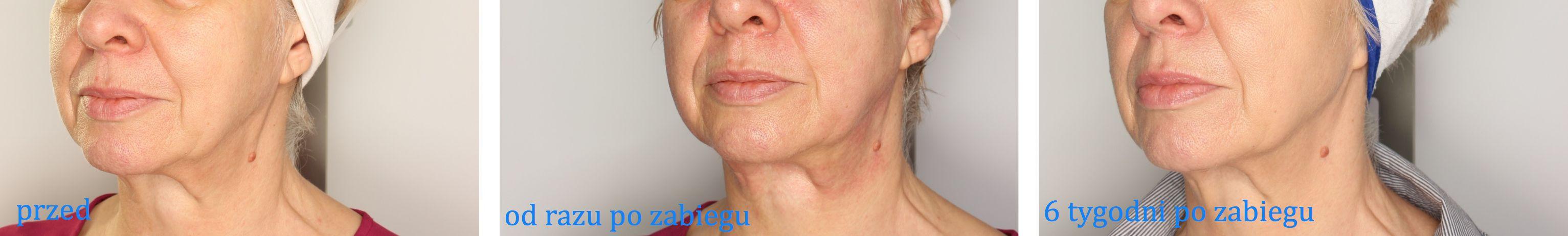 Zdjęcia przed i po zabiegu na owal twarzy HIFU