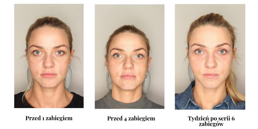 biodermogeneza zdjęcia przed i po